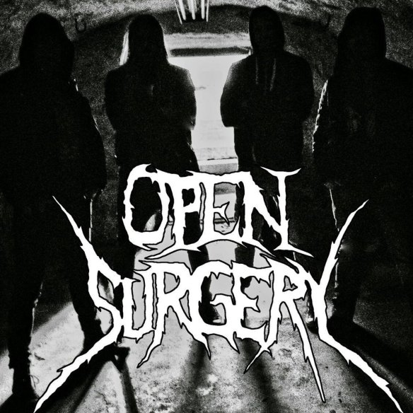 open-surgery-band-pic